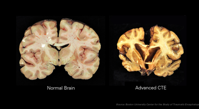 CTE Linked To Football: Largest Study Of Its Kind Finds 'Overwhelming Circumstantial Evidence'
