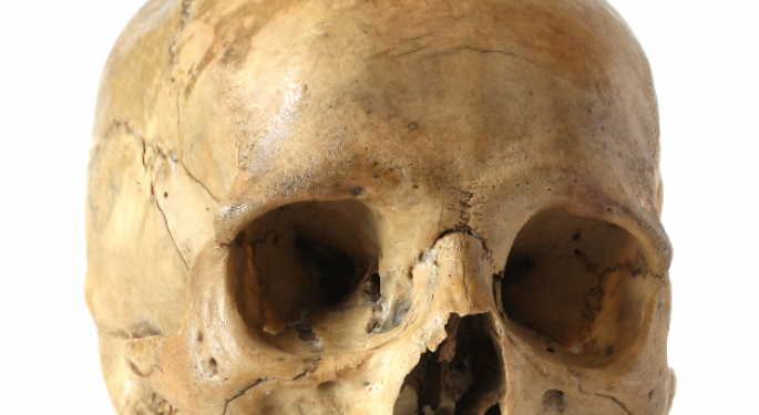 This Successful Skull Implant is a Huge Gain for 3D Printing