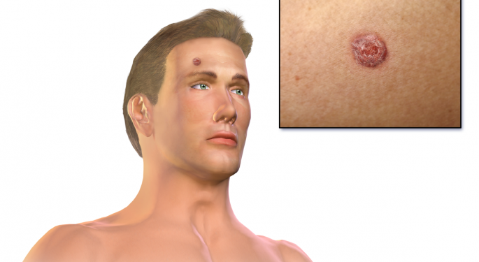 Sensus Healthcare CEO Shares A Look Into Skin Cancer Treatment